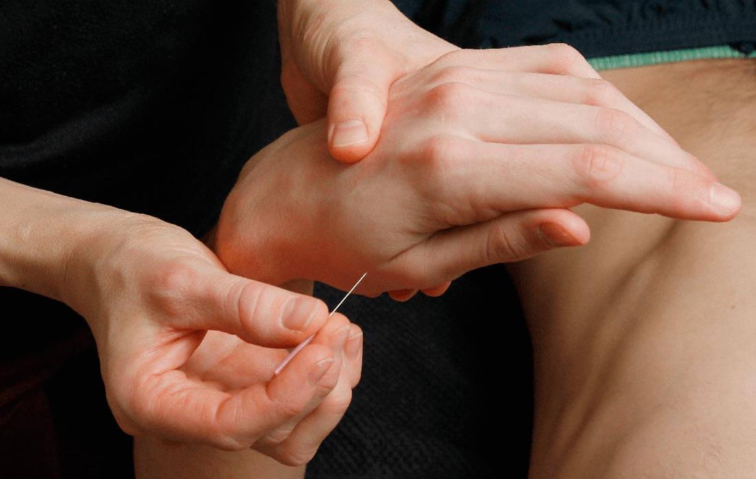 naal-i-haand_akupunktur_klinik