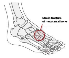 Træthedsbrud i foden
